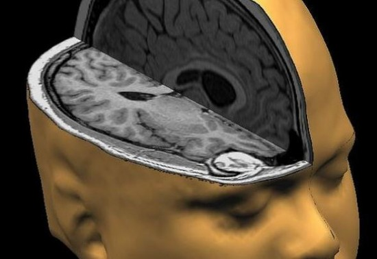 Les effets de la pornographie sur le cerveau et le comportement
